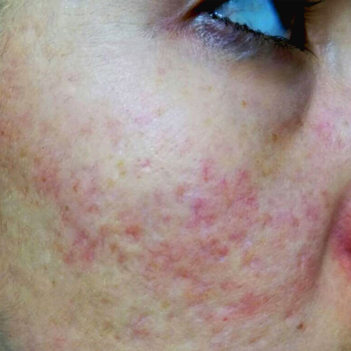Acne-Scaring-02-after