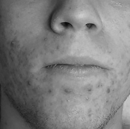 before-and-after-acne-treatment-oxford-leamington-spa_orig-black